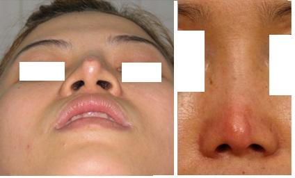 Kết quả hình ảnh cho đau nhắc sau khi nâng mũi
